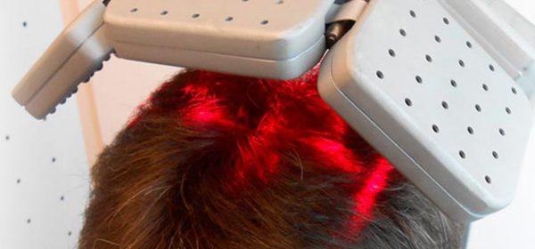 laser ricrescita capelli