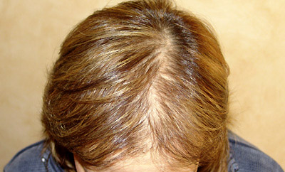 defluvio capelli telogen